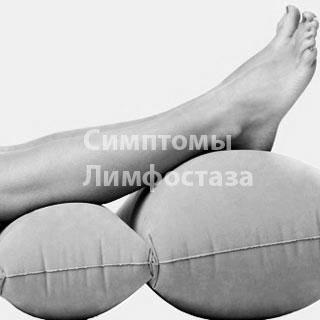 Проявление симптомов лимфостаза